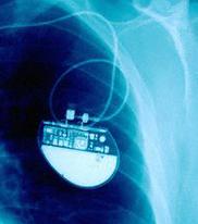 !implant